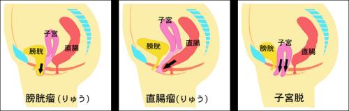 ①膀胱脱(膀胱瘤)②直腸脱(直腸瘤)③子宮脱