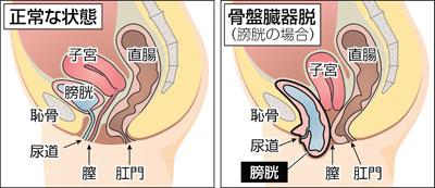 正常な骨盤 骨盤臓器脱の骨盤