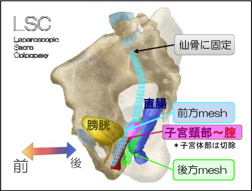 LSCメッシュ手術