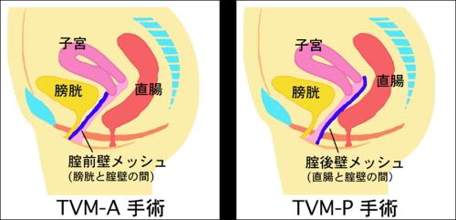 TVM手術2種類